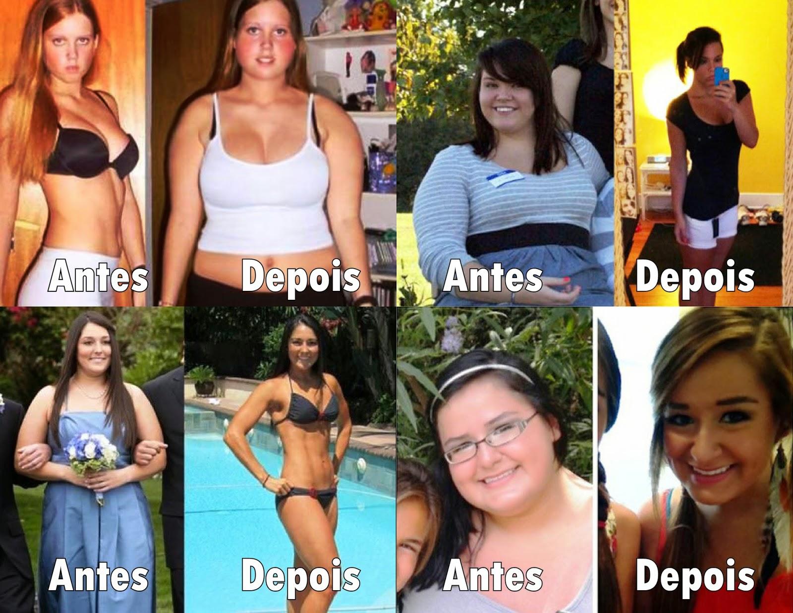 antes e depois, como perder peso, fotos, emagrecer, como emagrecer, blog de moda, sem cirurgia